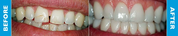Colin's teeth before and after