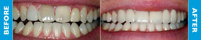 Darren's teeth before and after