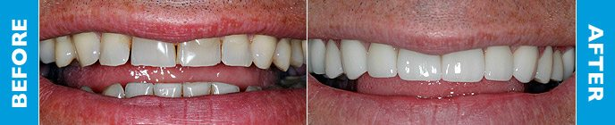 Don's teeth before and after