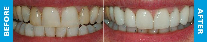 Terry's teeth before and after